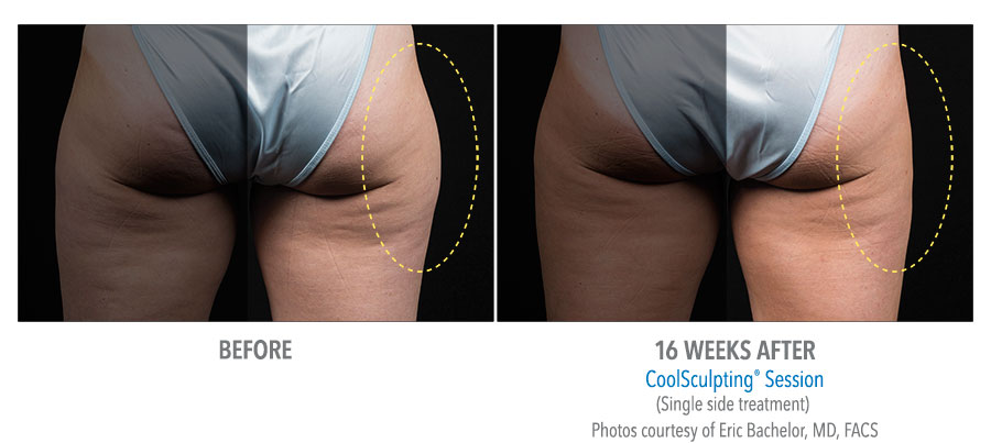 CoolSculpting outer thighs before and after