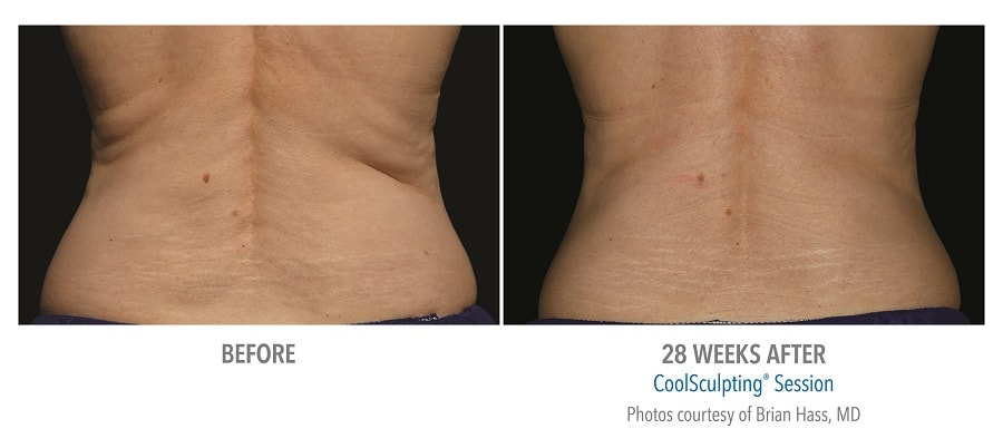 CoolSculpting love handles before and after