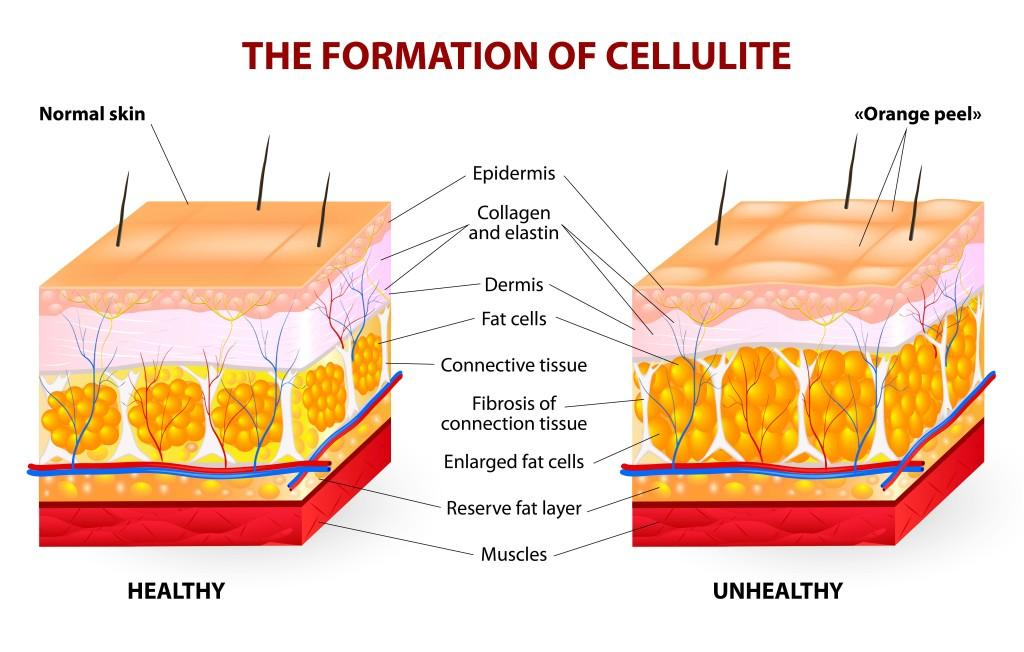 cellulite cool sculpting